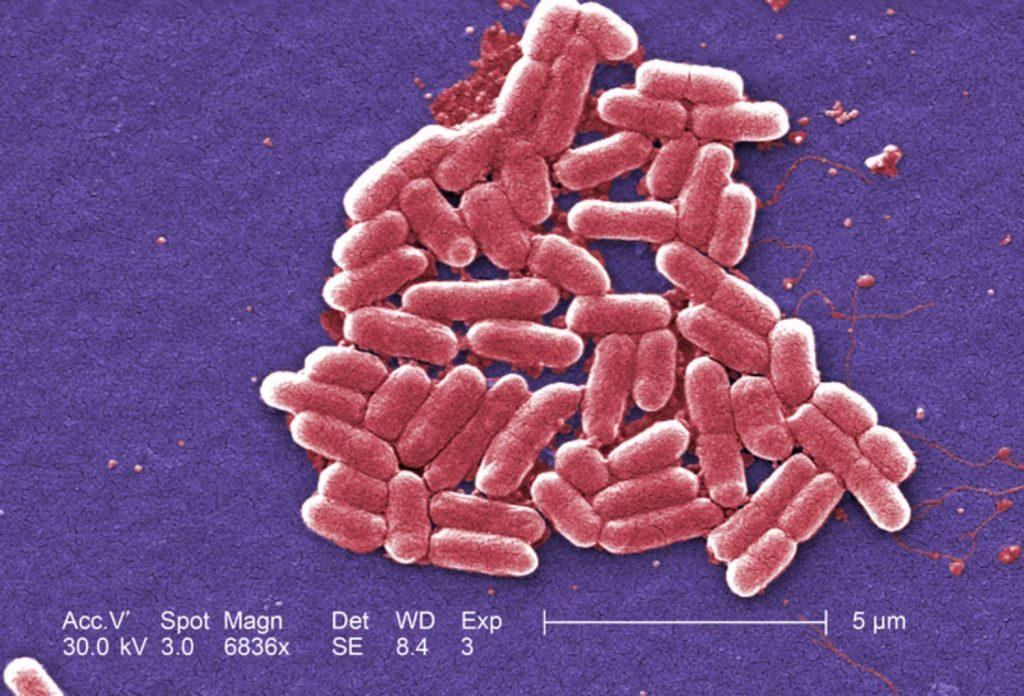 اشریشیا کلای (Escherichia coli)، باکتری گرم-منفی از سردۀ اشریشیا که به وفور در رودۀ تحتانی جانورات خونگرم یافت میشود. امتیاز تصویر: CDC