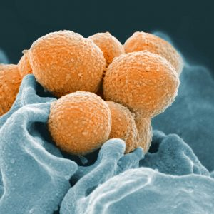 This handout image provided by the National Institute of Allergy and Infectious Diseases shows an electron microscope image of Group A Streptococcus (orange) during phagocytic interaction with a human neutrophil (blue). The same bacteria that cause simple strep throat sometimes trigger bloodstream or even flesh-eating infections instead, and over the years, dangerous cases have increased. Now researchers have uncovered how some strains of this bug evolved to become more aggressive. (National Institute of Allergy and Infectious Diseases via AP)
