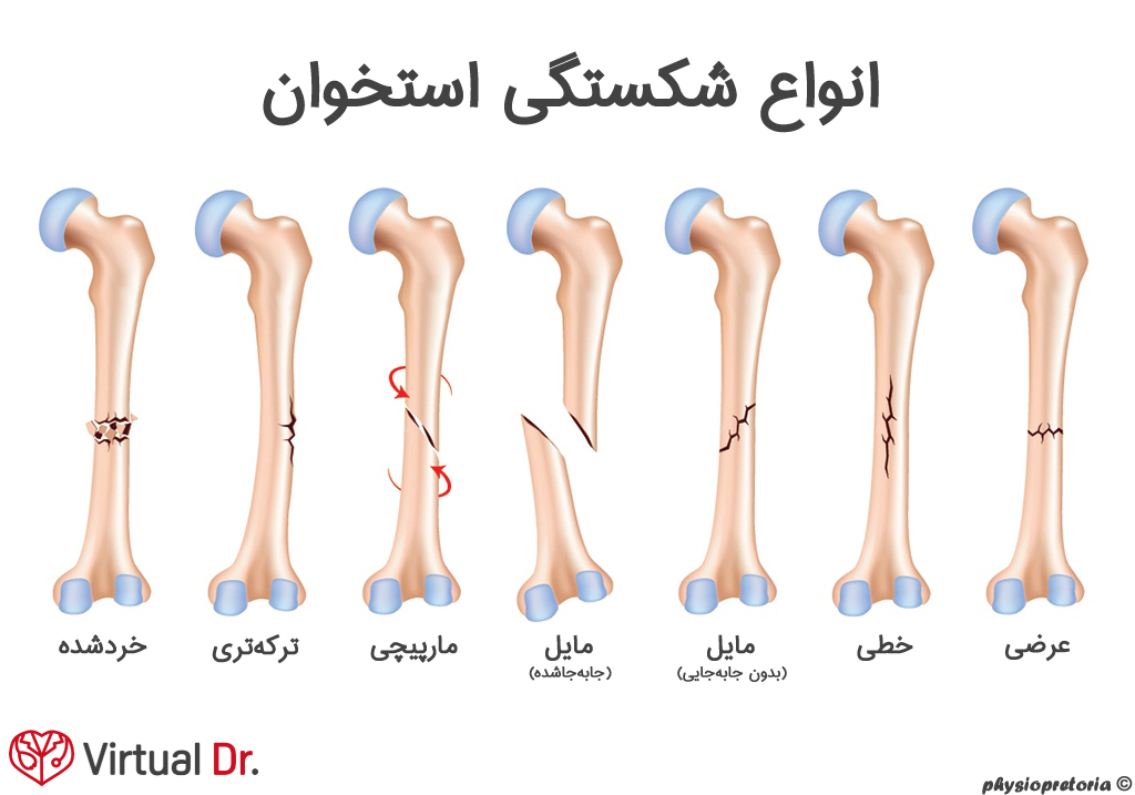 types_of_bone_fracture-virtualdr