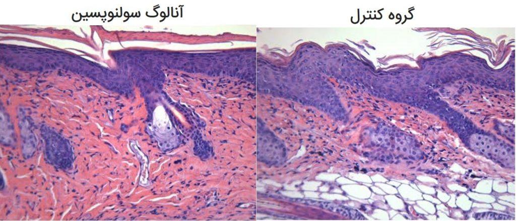 تصاویر فوق مقاطعی از پوست در مدل حیوانی بیماری پسوریازیس میباشد که سمت چپ با آنالوگ سولنوپسین تحت درمان قرار گرفته و سمت راست نمایانگر گروه شاهد است که با کرم معمولی کنترل شده است.