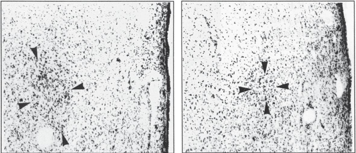 INAH3 در مغز یک مرد دگرجنسگرا (چپ) و همجنسگرا (راست)
