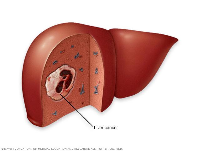 virtualdr.ir/liver cancer