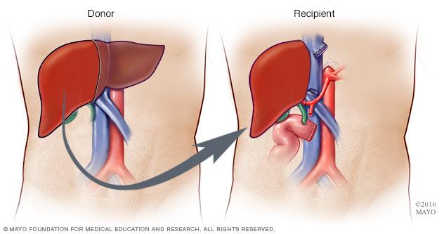 virtualdr.ir/liver donation