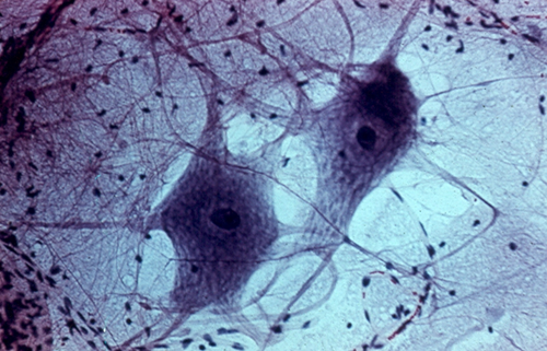 two nerve cells