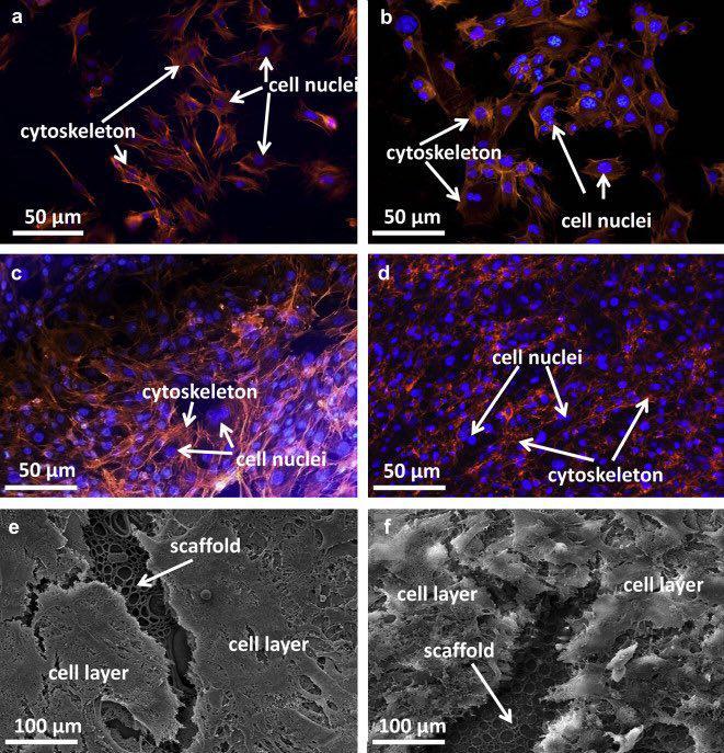 کامپوزیت نانوالماسهای فلورسانت در مهندسی بافت استخوان