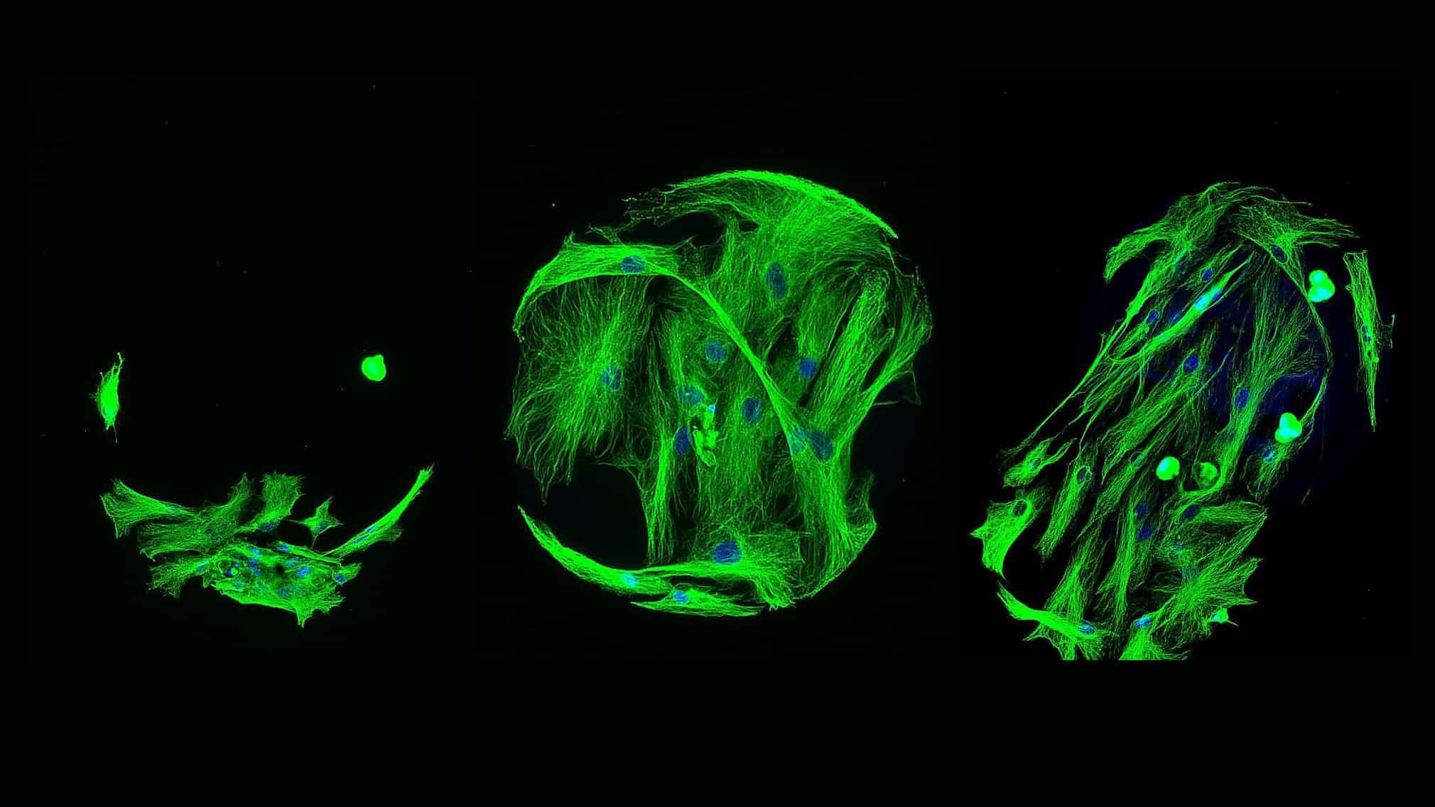 اسکرین صدها پلیمر برای کشف اثری که بر سلول مزانشیمی میگذارند. دکتر Mahetab Amer از دانشگاه نوتینگهام.