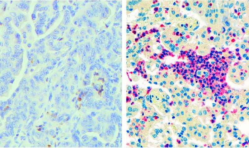 وتروفیل ها در داخل تومور آدنوکارسینوم ریه در سمت چپ، نوتروفیل ها در داخل یک تومورِ موش به رنگ قهوهای حضور دارند؛ در سمت راست، نوتروفیل ها در داخل یک تومور انسانی به رنگ قرمز حضور دارند.
