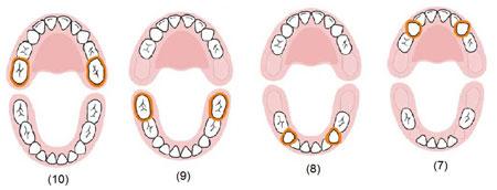 رشد دندان با سلول بنیادی