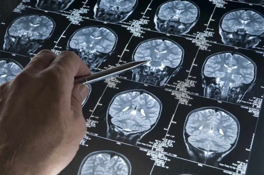 تفاوت مغز مردان و زنان