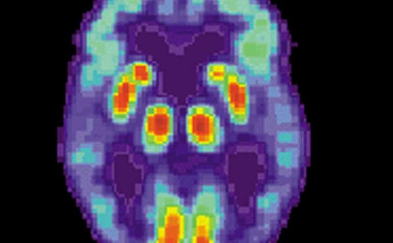 آلزایمر و نوروژنز