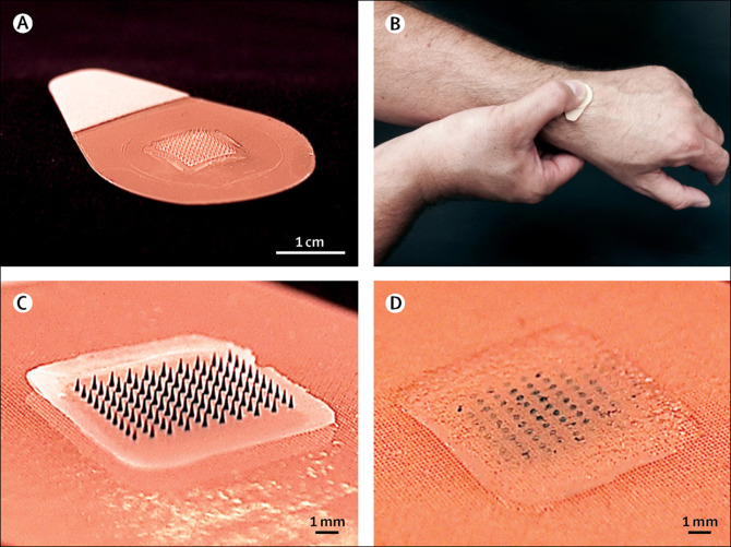 microneedle patch vaccination