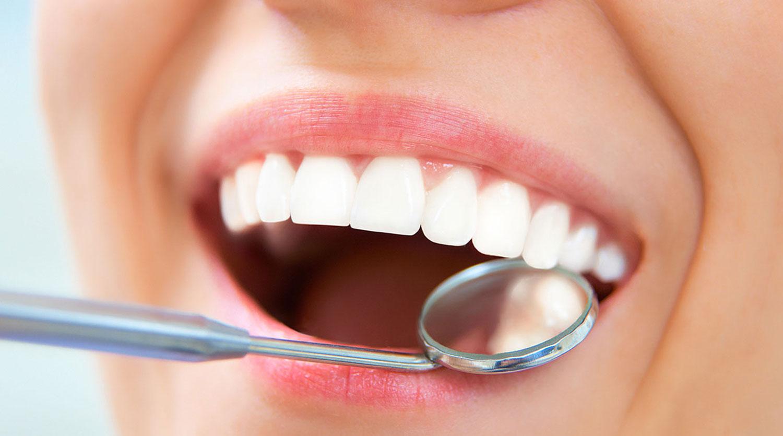 غربالگری سرطان دهان