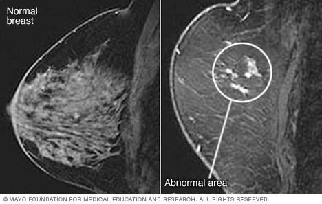 تصاویر توده پستان و پستان معمولی در MRI
