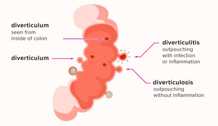 آیا دیورتیکولیت خطرناک است؟ آیا منجر به درد شکم میشود؟
