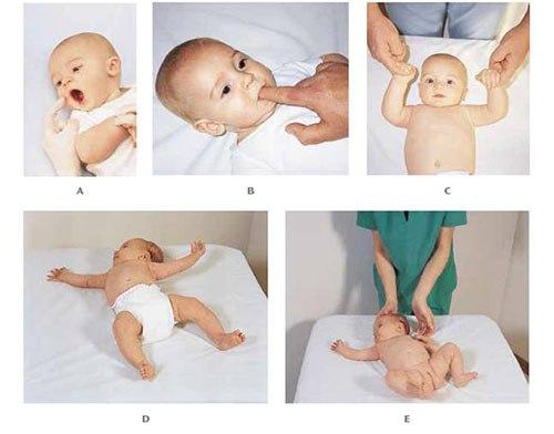 رفلکسهای نوزادان