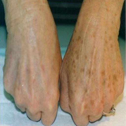 لکههای کبدی یا پیری
