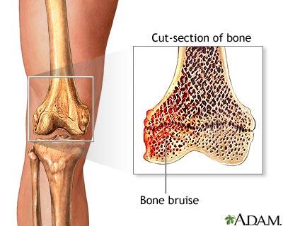 کبودی استخوان