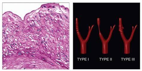 دیسپلازی فیبروماسکولار
