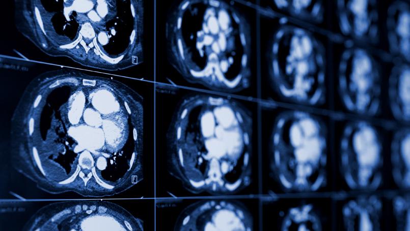 غربالگری سرطان ریه