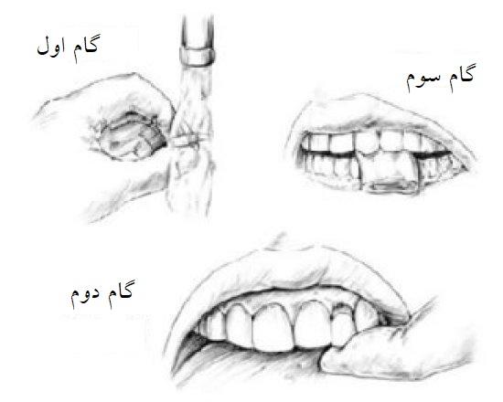 جایگذاری دندان