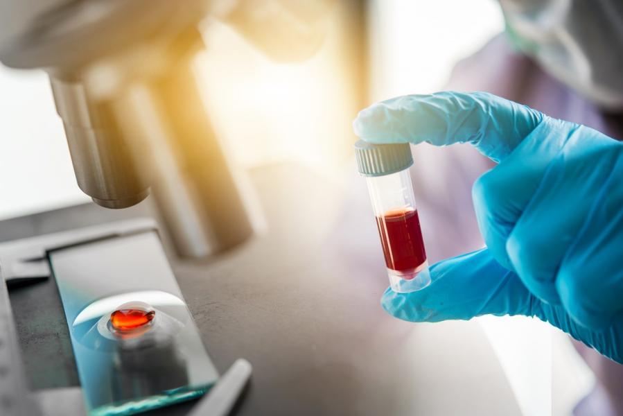 Description: lab_testing_blood_vial.jpg